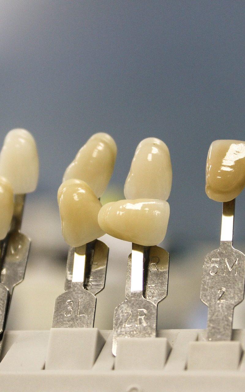 Ładne urodziwe zęby dodatkowo olśniewający przepiękny uśmieszek to powód do dumy.